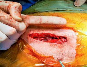 mini invasiva dell'anca panti