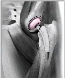 chirurgia mini invasiva panti qui.press